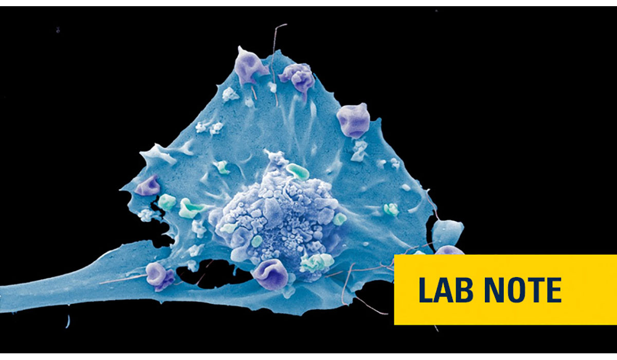 Breast Cancer Cell Lab Note Gatewayextension